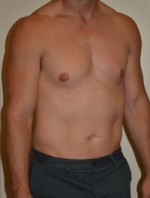 Male Pectoral Implants