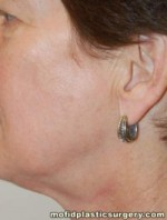 Laser and Chemical Peels