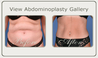 abdominoplasty thumb